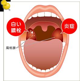 のどの症状 | 守山市 つかもと耳鼻咽喉科 急性扁桃炎 扁桃肥大 ...